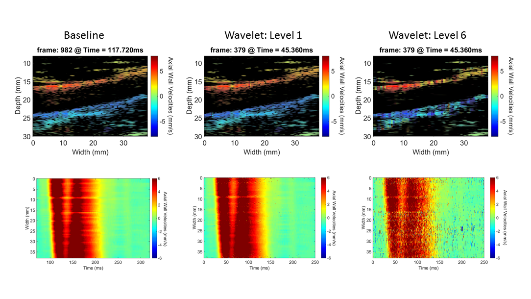 PWI images at specific time instants (top), and the spatio-temporal imaging of pulse-wave propagation (bottom).